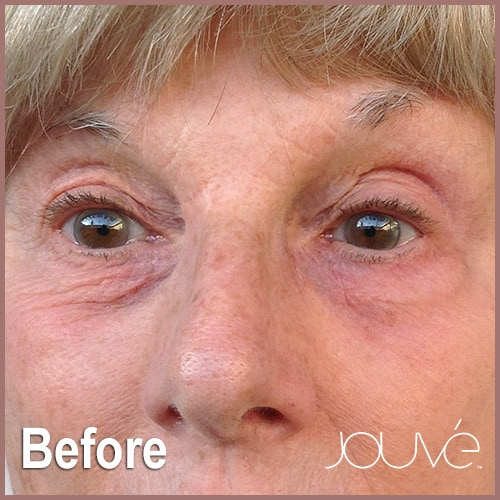 Jouve-Heshie-Before